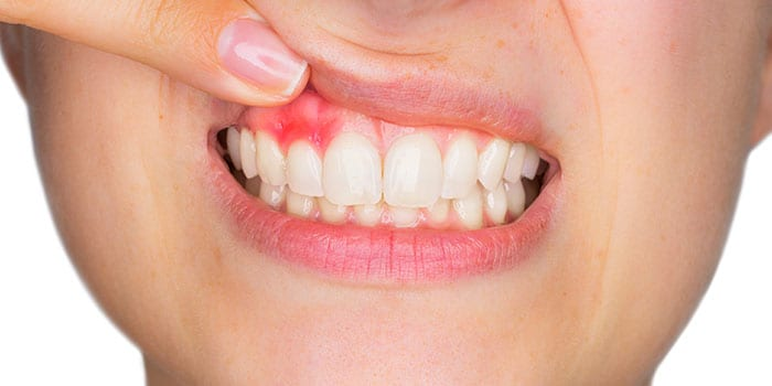 bleeding gums that are red and swollen